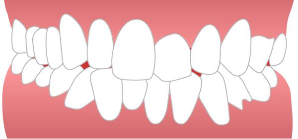 前歯ガタガタイメージ
