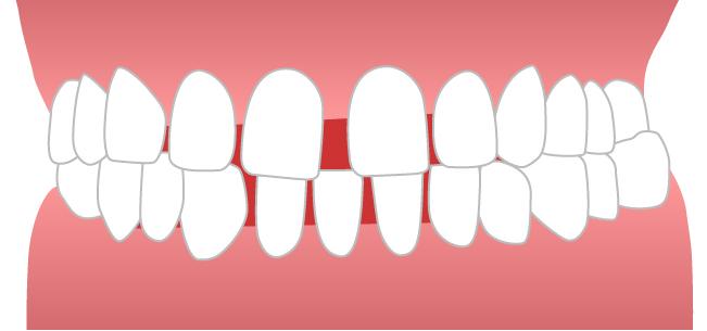 すきっ歯イメージ