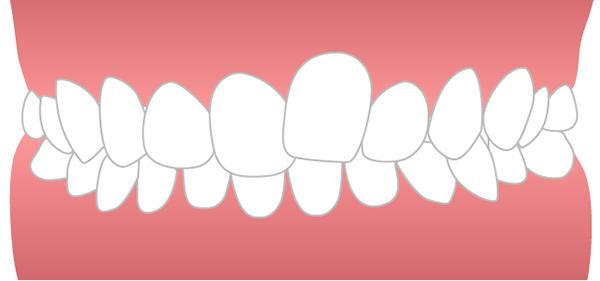 前歯のねじれイメージ