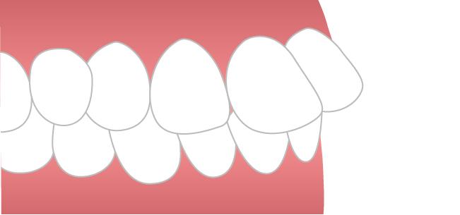 出っ歯イメージ